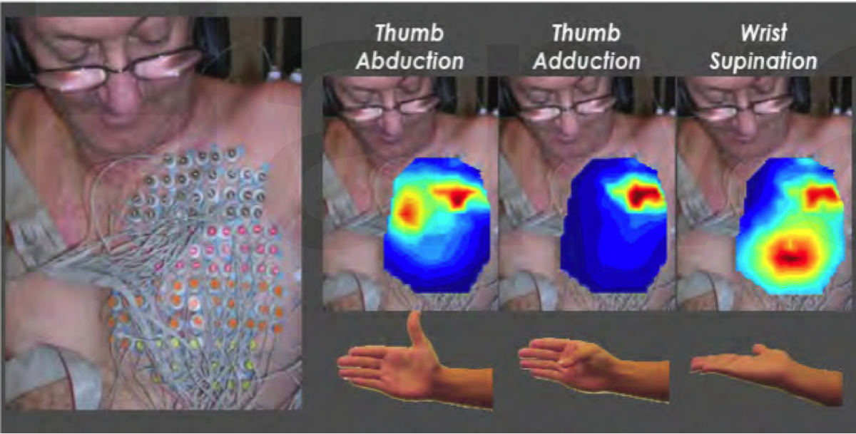 Bypassing the Spinal Cord in Limb Movement